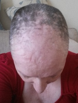 Start of chemo related hair loss